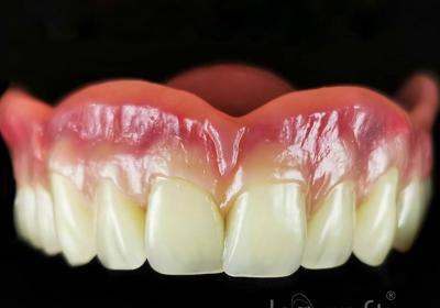 انواع پروتزهای دندانی
