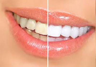 چه چیزی دندایهایمان را زرد میکند؟
