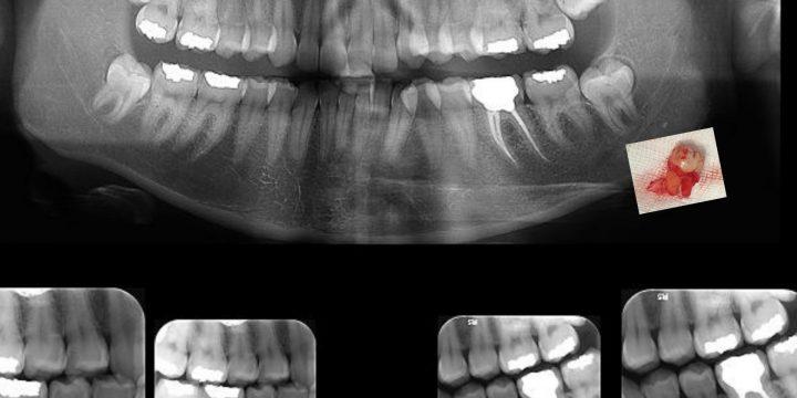 انواع نهفتگی دندان عقل