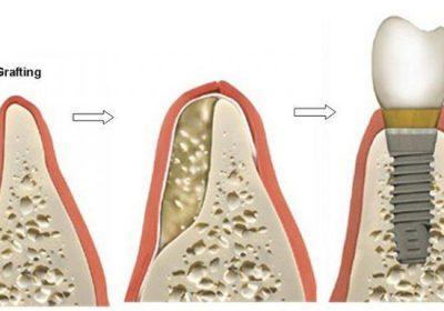 جراحی پیوند استخوان چه موقع انجام میشود