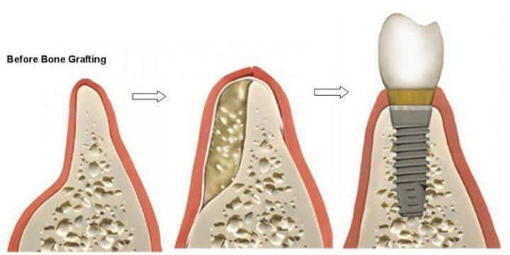جراحی پیوند استخوان