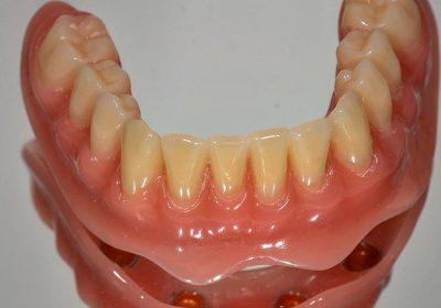 اوردنچر(دست دندان مبتنی بر ایمپلنت)