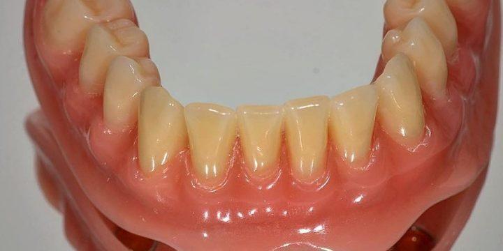 اوردنچر (دست دندان مبتنی بر ایمپلنت)